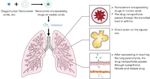 nanotechnology in asthema/writetoaspire