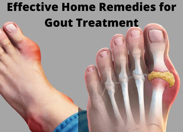 gout treatment-write to aspire